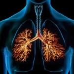 bronhit