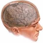 chistyie-sosudyi-mozga